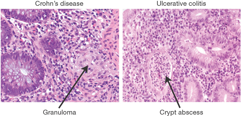 Comparison of histology between ulcerative colitis and Crohn disease (source)