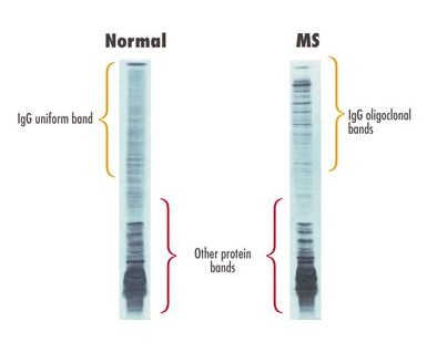 Comparison of western blotting results between a normal individual, and one with MS (source)