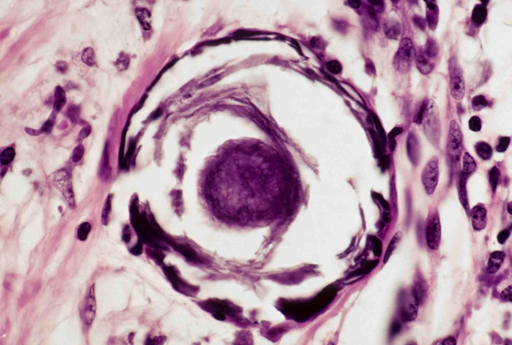 Appearance of psammoma body in a case of papillary thyroid cancer (source)