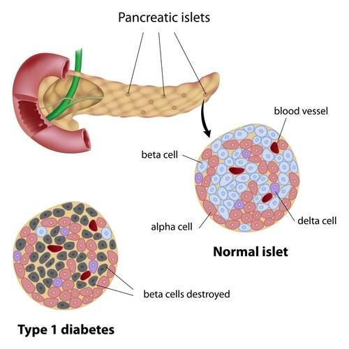 Type 1 diabetes is characterized by destruction of beta cells in the pancreas (source)