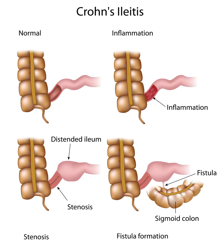 Crohn disease can lead to inflammation, stenosis, and fistula formation in the bowels (source)