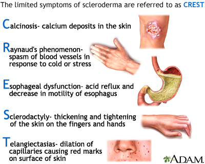 Symptoms of CREST syndrome (source)