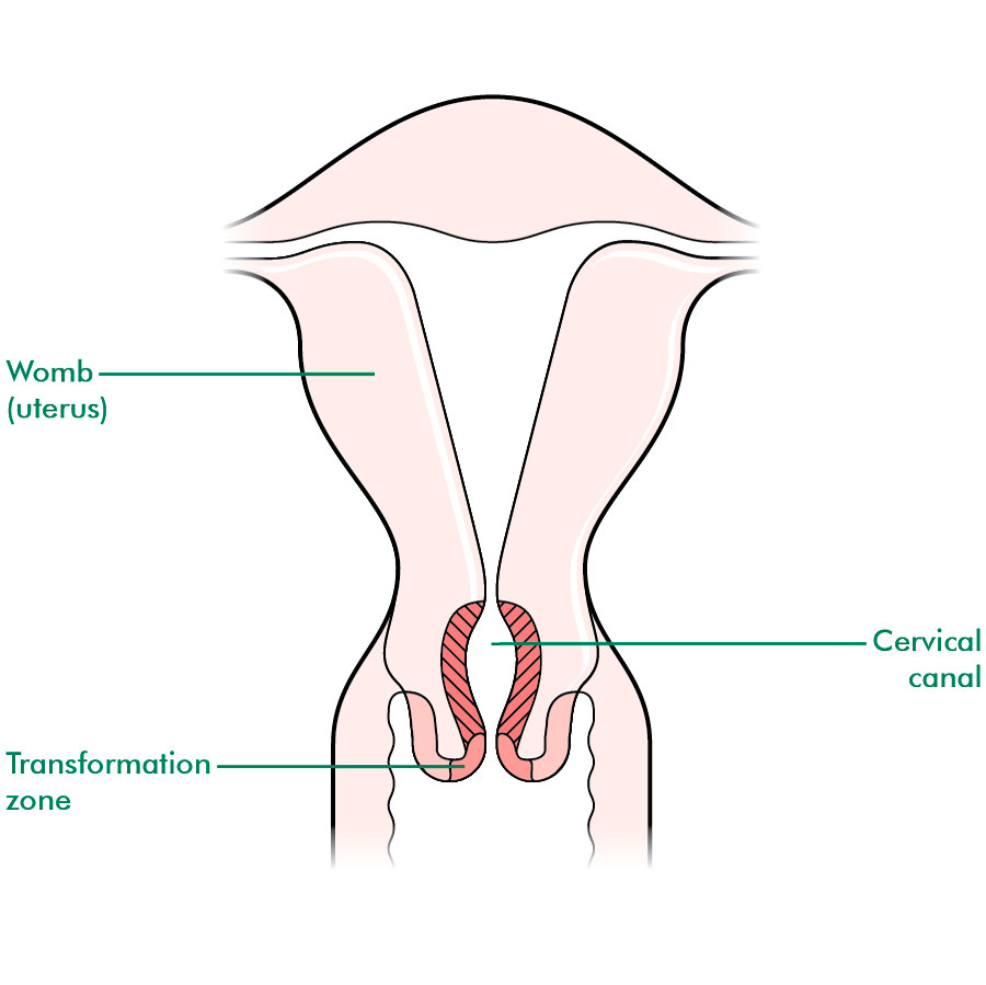 Anatomical location of the transformation zone. This is the most common site of cervical cancer (source)