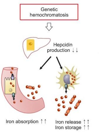Pathophysiology of hemochromatosis (source)