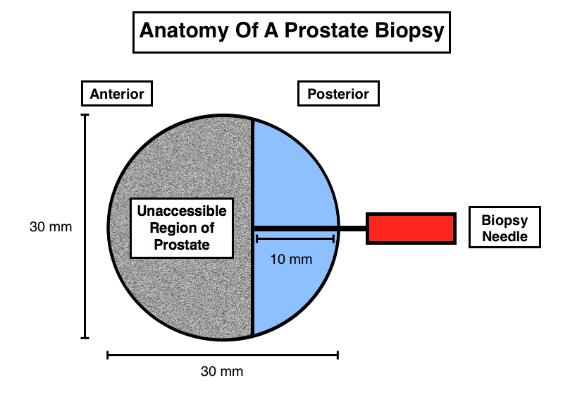 The anterior 2/3rds of the prostate are not accessible by the needle used for biopsy, and more aggressive forms of cancer can be found in this anterior region of the prostate (source)