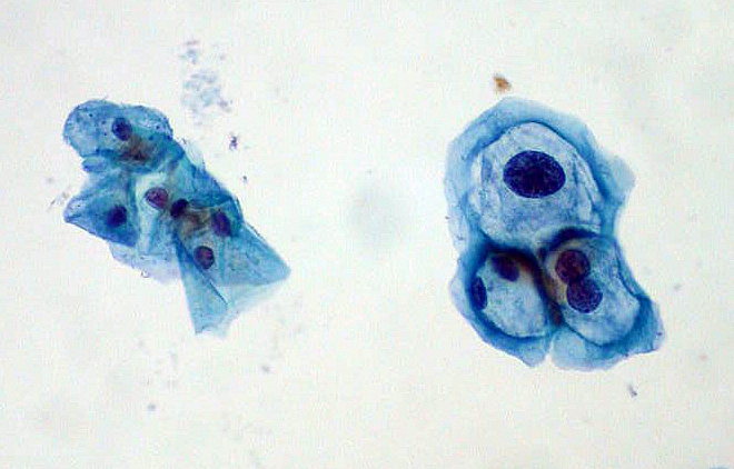 Normal (left) vs. abnormal/koilocyte (right) cervical cells from a pap smear (source)