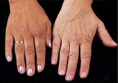 Hemochromatosis can cause bronzing of the skin (seen on the left hand in the image) due to hyperpigmentation. The right hand is a normal patient for comparison (source)