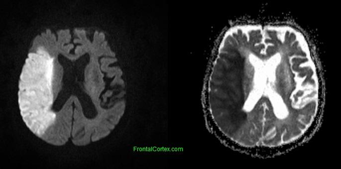 MRI imaging of a stroke that involves the territory of the right MCA (source)
