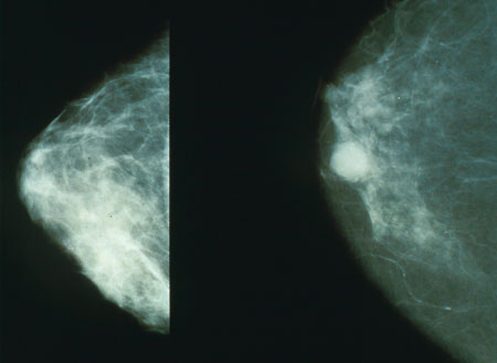 Normal breast (left) and cancerous finding (right) seen on mammography (source)
