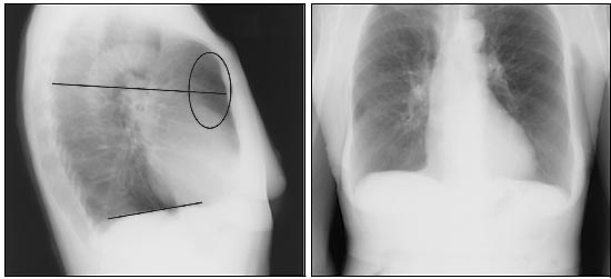 Chest x-rays of a patient with severe COPD. A flattened diaphragm can be observed (line) as well as increased retrosternal trapped air (oval, source).