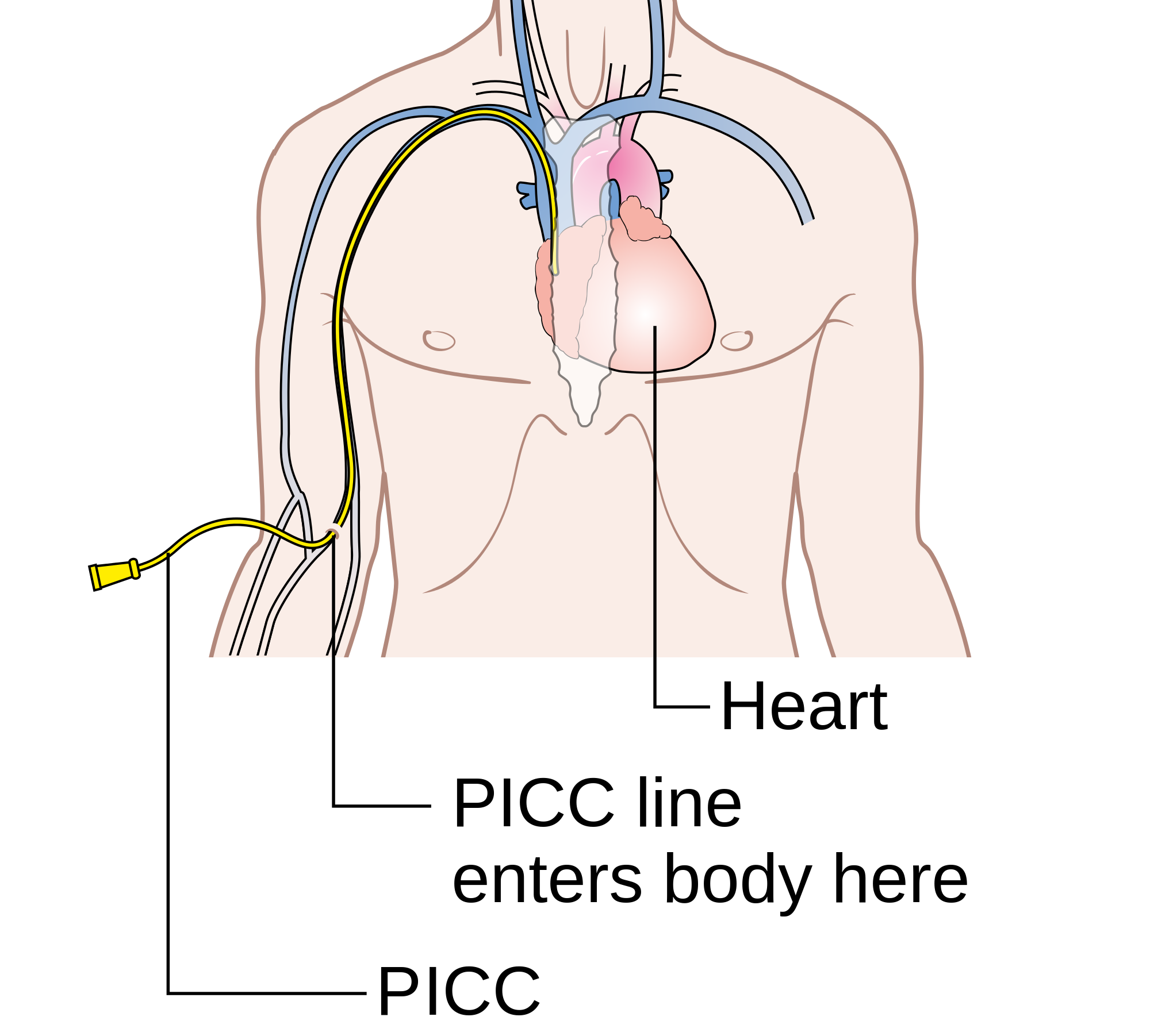 How To Take Care Of A Picc Line