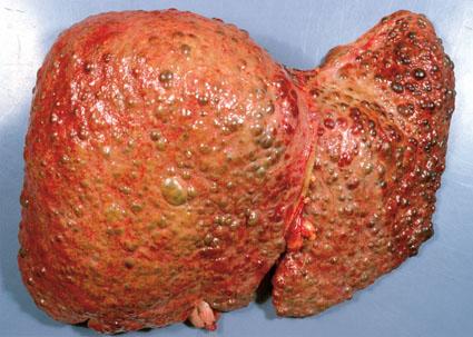 Diseased organ in Wilson disease (source)