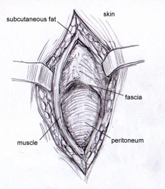 Layers of tissues between the skin and peritoneum (source)