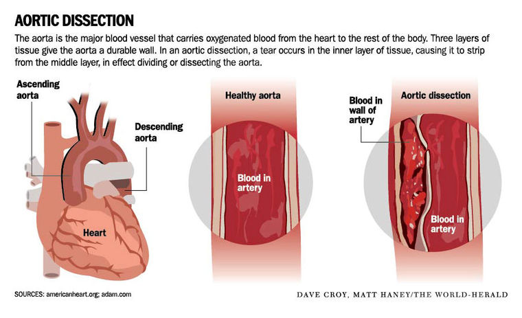 Blood pressure management in mechanical circulatory support