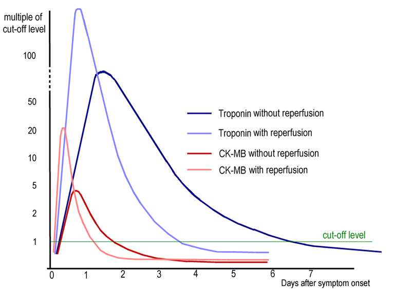 Timeline of elevated troponin I levels, with and without re-profusion (source)