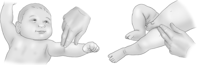 Location of brachial and femoral pulses in a newborn (source)