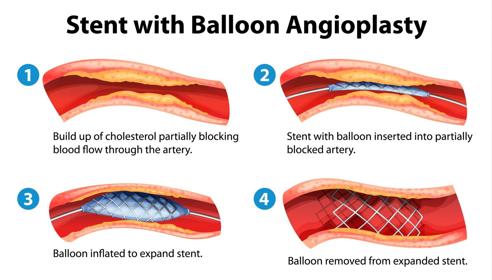Basic steps in balloon angioplasty with stenting (source)