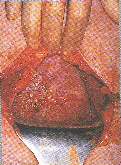 Exposure of the uterus (source)