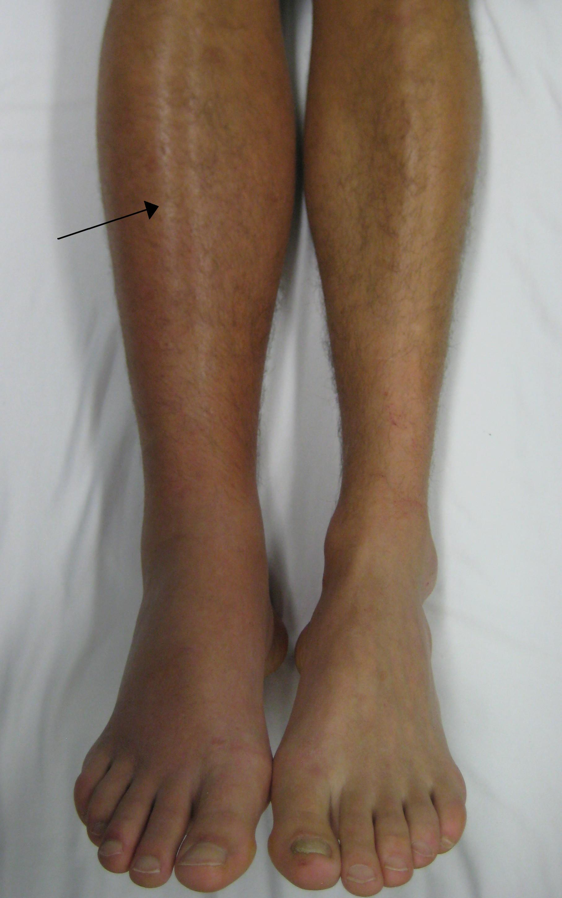 Physical appearance of a patient who has a DVT in the right lower leg (source)