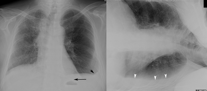 In these images a small pleural effusions is seen on the upright X-ray (left pane). When the patient is put in the LLDP layering of the fluid is observed (right pane, source).