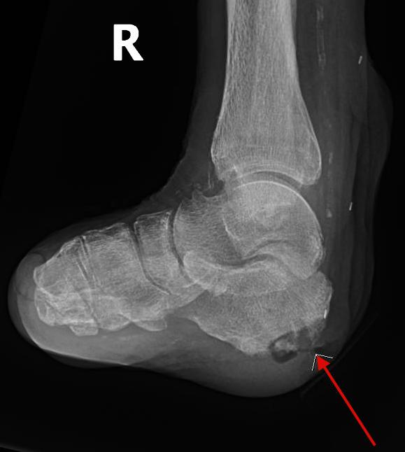Osteomyelitis - Stepwards
