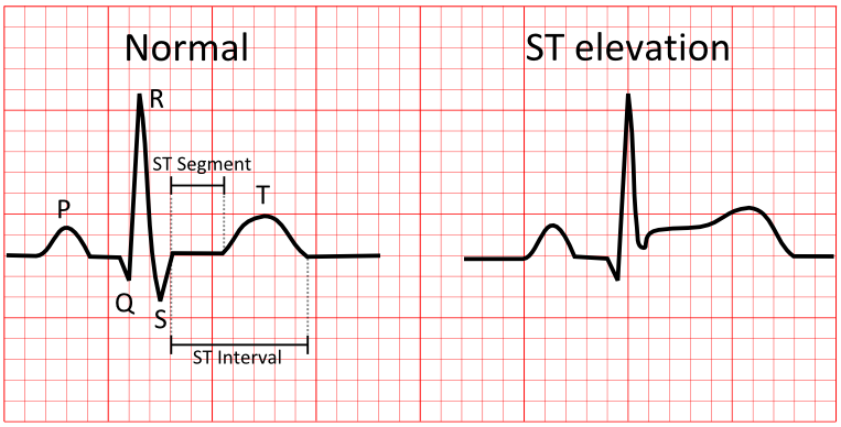 Electrocardiography  Wikipedia