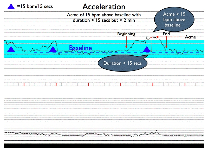 Characteristics of an acceleration on CTG/EFM (source)