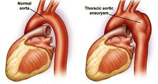 Anatomy of a thoracic aortic aneurysm (source)