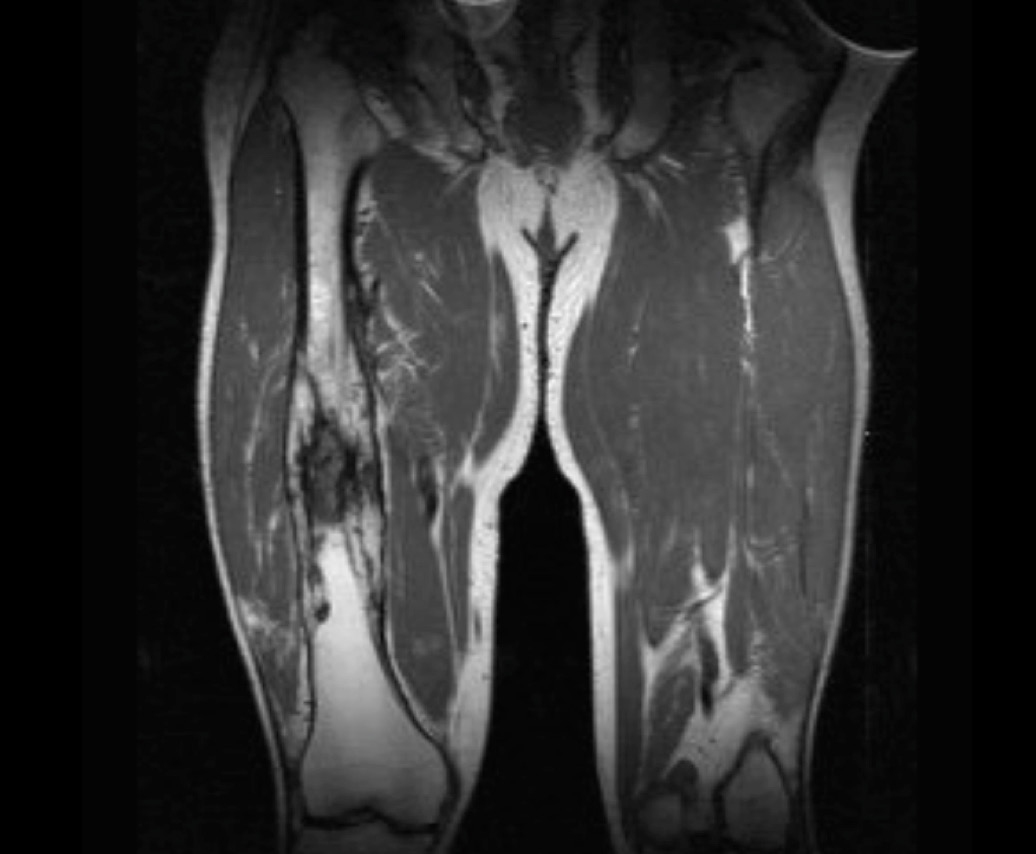 MRI imaging showing osteomyelitis of the right femur (source)