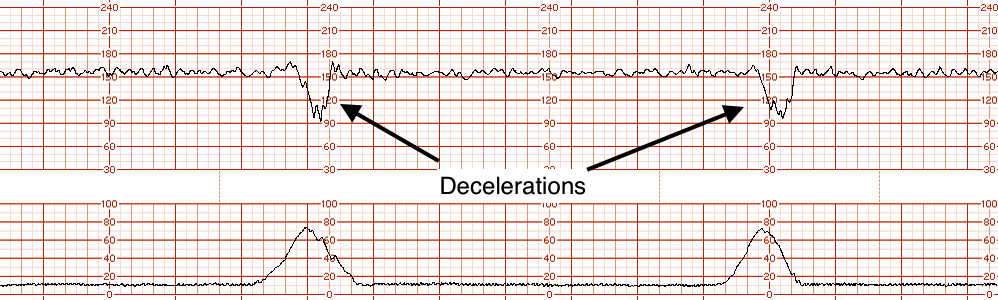 Example of decelerations on EFM tracing (source)