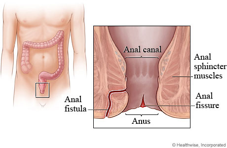 Anatomical location of an anal fissure (source)