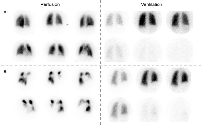 V/Q scans in a patient with very low likelihood of PE (A) and a high likelihood of PE (B). Note the poor perfusion in pane B (source)