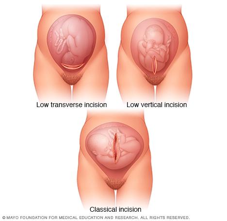 Cesarean Section Cesarean Delivery Stepwards
