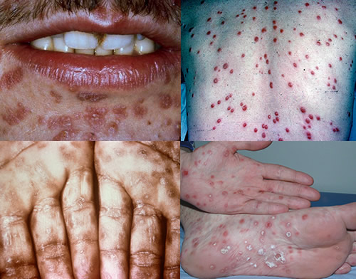 Secondary syphilis rash seen on various parts of patient's bodies (source)