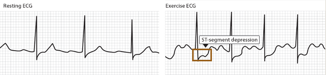A resting ECG is without ST changes in this patient. Upon exercising, the stress test reveals ST depressions which are suggestive of ischemia (source)