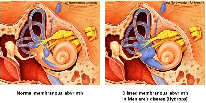 Meneire's disease is thought to be caused by increased fluid buildup in the structures of the ear (source)