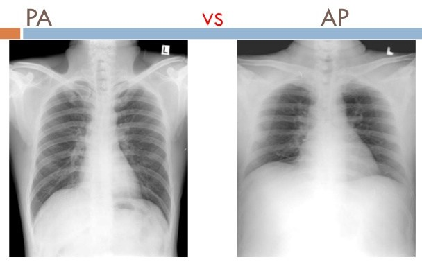 Comparison of PA vs. AP views of chest X-rays. Note the larger appearing heart on the AP view. This is because the distance is increased between the film and the heart,allowing for the X-rays to spread for a greater distance before developing the film (source)