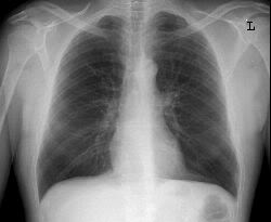 Flattened hemidiaphrams seen on the chest X-ray of a patient (source)