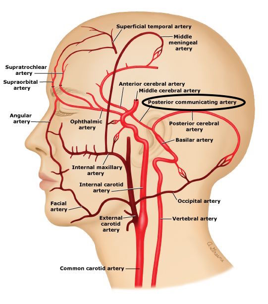 Anatomical location of the posterior communicating artery (source)