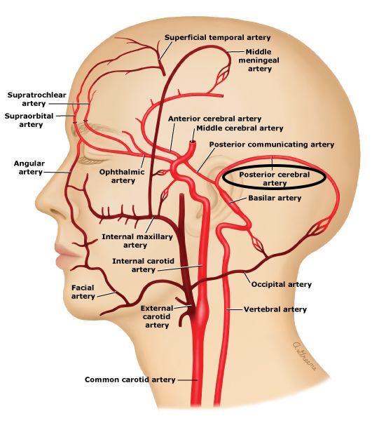 Posterior Cerebral Artery Pca Stepwards