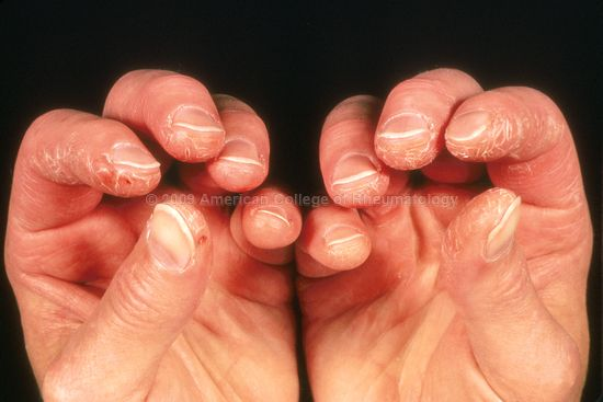 Mechanic's hands seen in a patient with dermatomyositis (source)