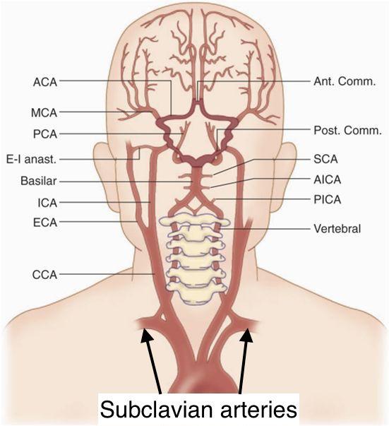 Vertebral Artery Stepwards