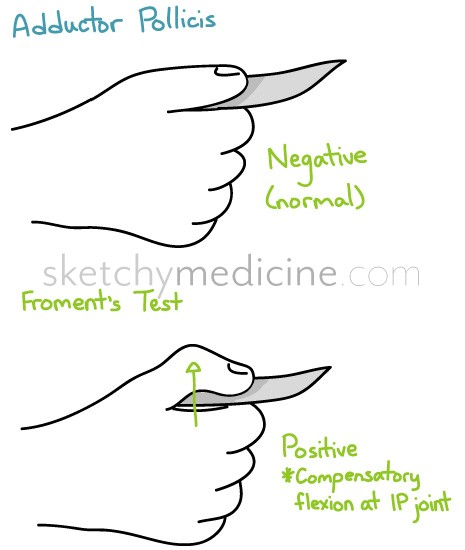 Schematic showing positive Froment's sign (source)