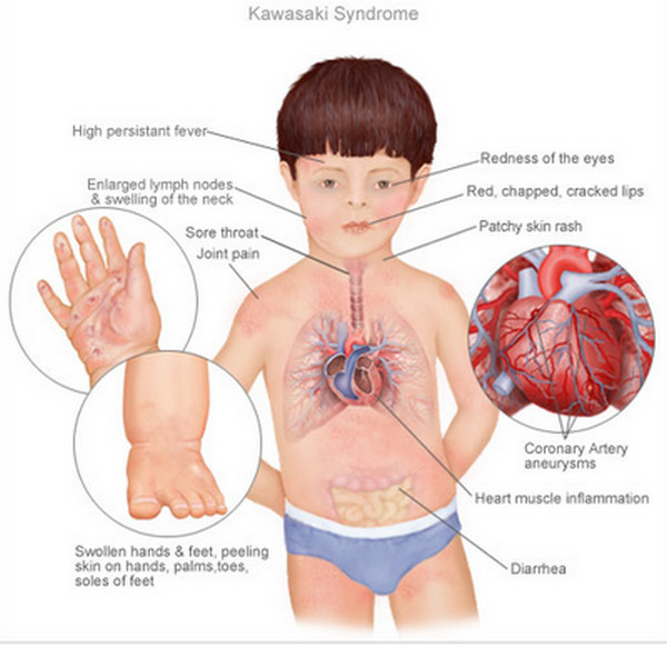 Clinical consequences of Kawasaki disease (source)