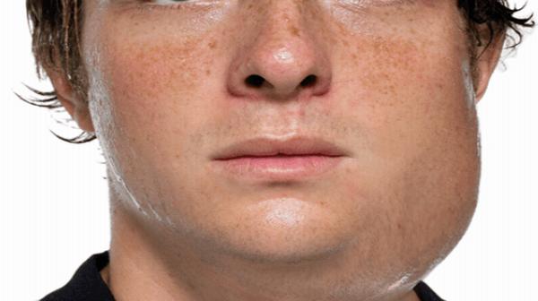 mumps - photo #2
