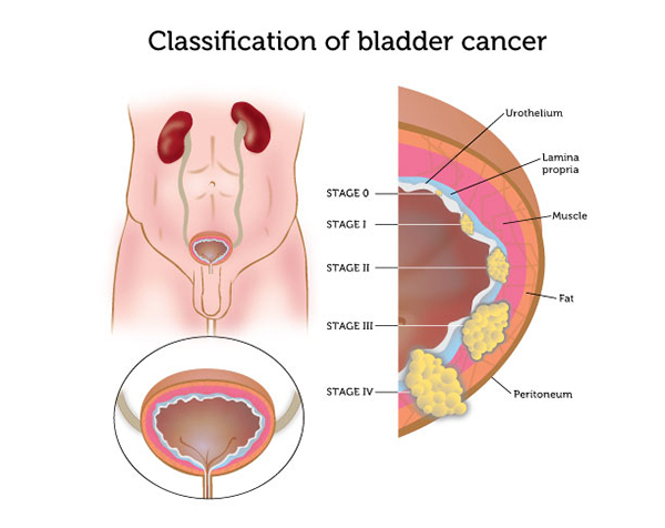 Stages of bladder cancer are dictated by which layers of the bladder are involved in the spread of the malignancy (source)