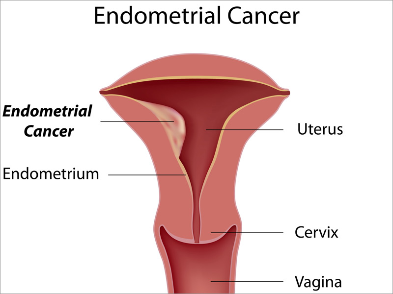 Patients with PMB should be evaluated for endometrial cancer as this can cause uterine bleeding (source)