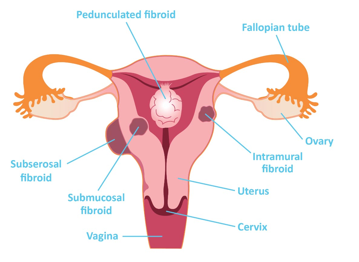 Different types of fibroids may sometimes (albeit less commonly) be the cause of PMB (source)