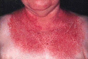 Shawl rash seen in a patient with dermatomyositis (source)