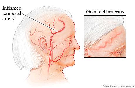 Temporal Arteritisgiant Cell Arteritis Gca Stepwards